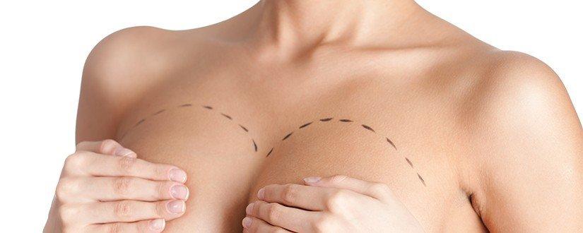 Prótese de Mama: Por cima ou por baixo do músculo?