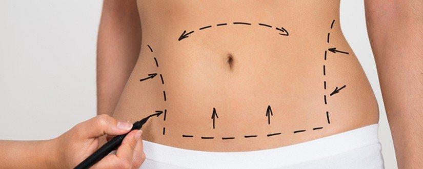 Miniabdominoplastia ou Abdominoplastia: Entenda a diferenca