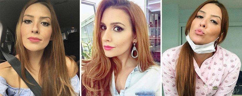 Ex-BBB Tamires Peloso mostra resultado de bichectomia