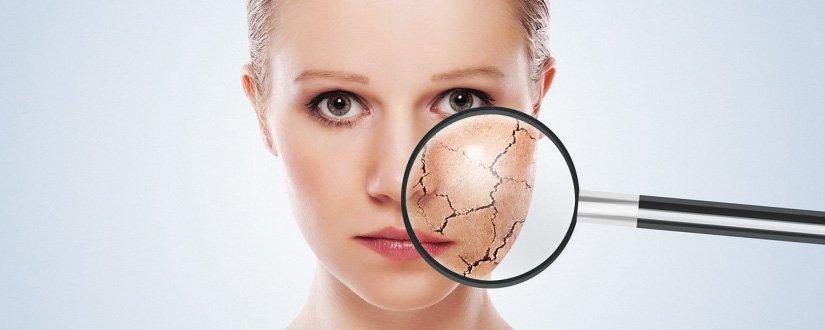 10 dicas para manter a pele e os cabelos saudáveis no inverno