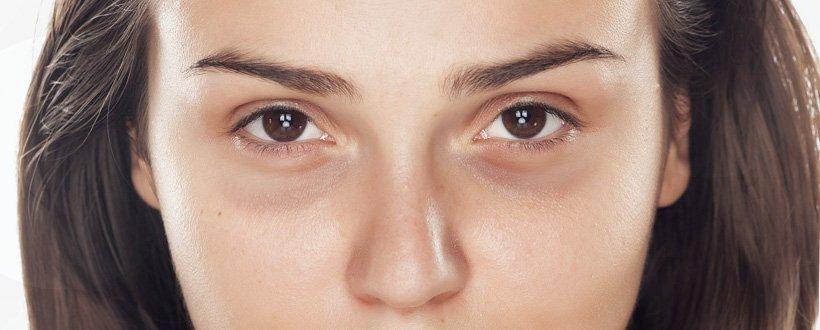 15 mitos e verdades sobre as olheiras