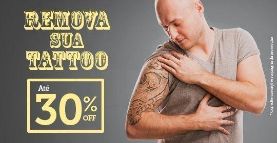 Remova sua Tattoo com 30% OFF