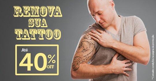Remova sua tattoo com até 40% de desconto