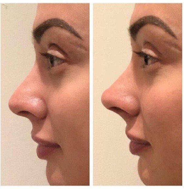 Juju Salimeni mostra resultado de preenchimento no nariz
