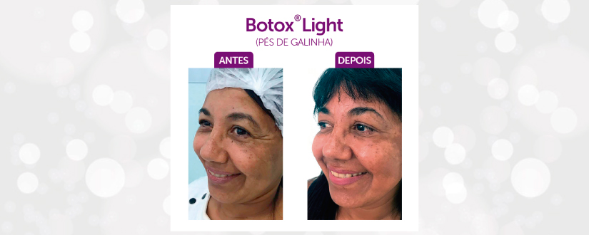 Botox Pés de Galinha