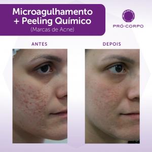 microagulhamento + limpeza de pele