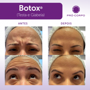 Jornada da Pele: Melhores tratamentos para a pele aos 30 anos.
