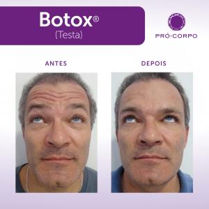 botox-50-anos