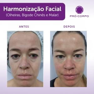 harmonização facial - tratamento