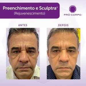 procedimento-40-anos