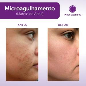 microagulhamento-acne