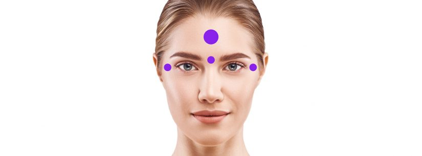 Botox - Principais áreas de aplicação