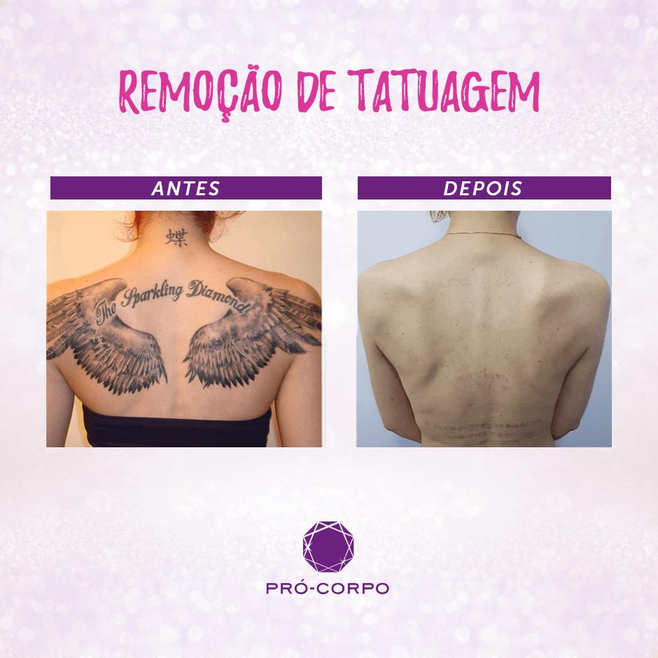 Remoção De Tatuagem Pró Corpo