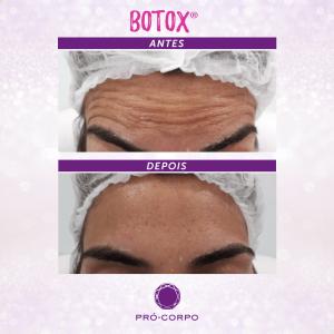 Botox ®: Fotos Antes e Depois