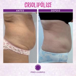 Criolipólise: Fotos de Antes e Depois