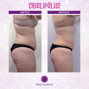 criolipolise-foto-antes-depois