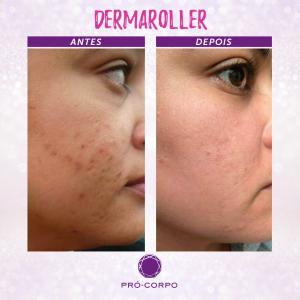 dermaroller-marcas-acne-fotos-antes-depois