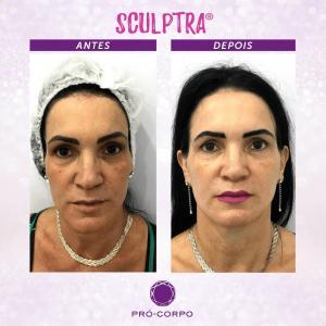 Flacidez Facial - Fotos Antes e Depois