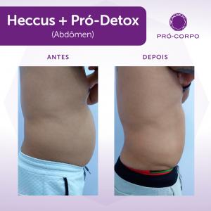 heccus+prodetox-campinas