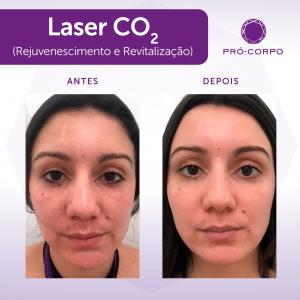 Laser CO2 Fracionado Fotos Antes e Depois