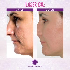 laser-co2-fracionado-marcas-acne-fotos-antes-depois-2