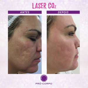 laser-co2-fracionado-marcas-acne-fotos-antes-depois