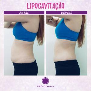 Gordura Localizada: Fotos de Antes e Depois