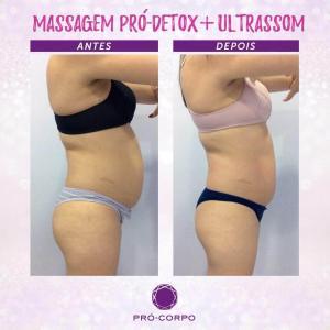 Massagem Pró-Detox Fotos Antes e Depois