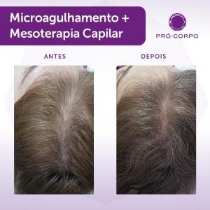Dermaroller + Mesoterapia Fotos Antes e Depois