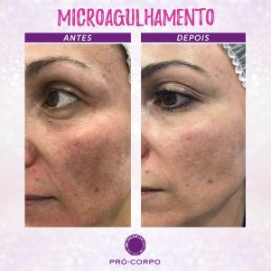 Microagulhamento Fotos Antes e Depois