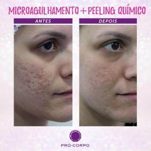 Peeling Químico Fotos Antes e Depois