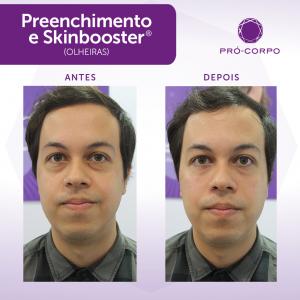 Olheiras Fotos Antes e Depois