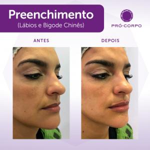 preench-labios-e-bigode-paulista2