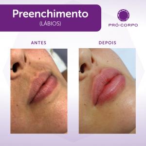 Preenchimento Labial Fotos Antes e Depois