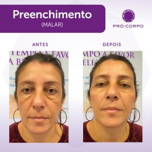 Preenchimento Fotos Antes e Depois