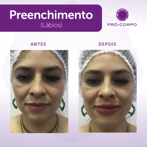 preenchimento-labial-londrina