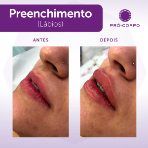 preenchimento-labios-lpaulista