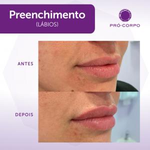 preenchimento-labios-moema-9