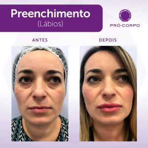 preenchimento-moema-labios-5