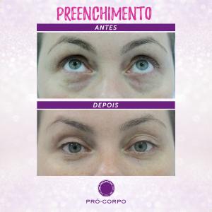 preenchimento-olheiras-foto-2-antes-depois