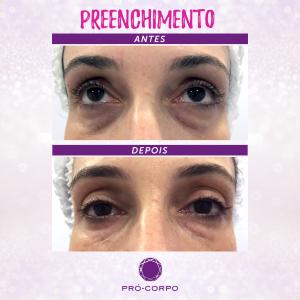 preenchimento-olheiras-foto-antes-depois
