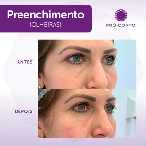 preenchimento-olheiras-moema (2)