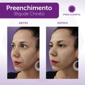 preenchimento-tijuca-bigode-chines3