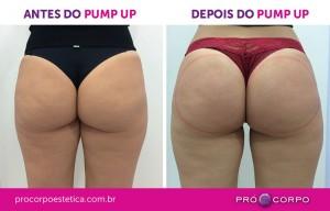 Pump Up Antes e Depois