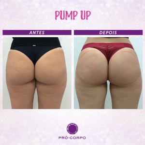 pump-up-bumbum-fotos-antes-depois-2