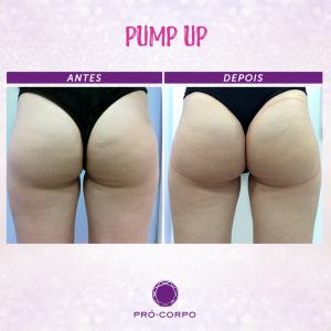 pump-up-bumbum-fotos-antes-depois-3