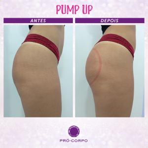 pump-up-bumbum-fotos-antes-depois
