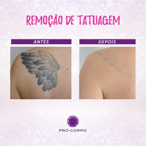 Remoção de Tatuagem: Fotos de Antes e Depois