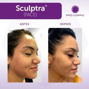 Sculptra Antes e Depois