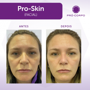 Pró-Skin Antes e Depois